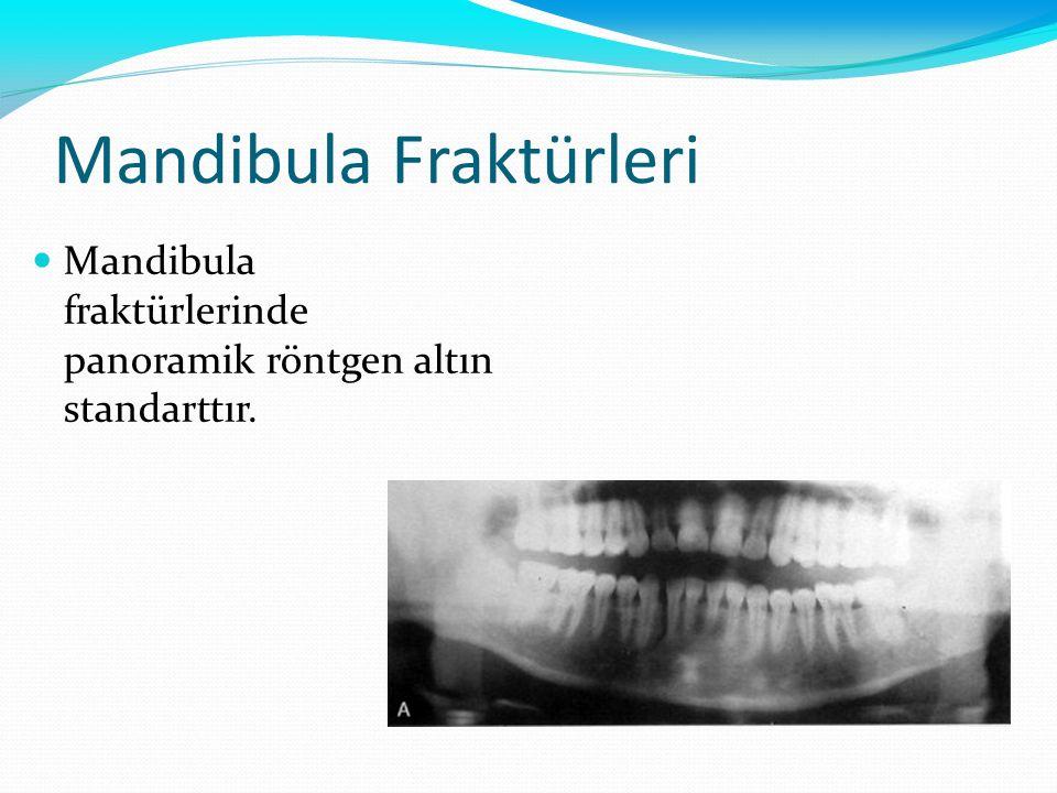 Mandibula Fraktürleri Mandibula fraktürlerinde panoramik röntgen altın standarttır.