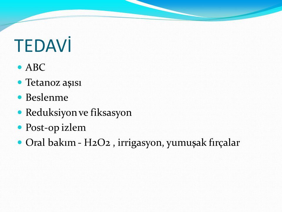 TEDAVİ ABC Tetanoz aşısı Beslenme Reduksiyon ve fiksasyon Post-op izlem Oral bakım - H2O2, irrigasyon, yumuşak fırçalar