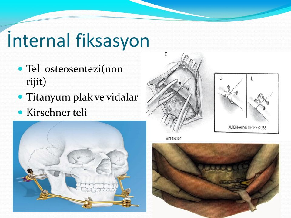 İnternal fiksasyon Tel osteosentezi(non rijit) Titanyum plak ve vidalar Kirschner teli