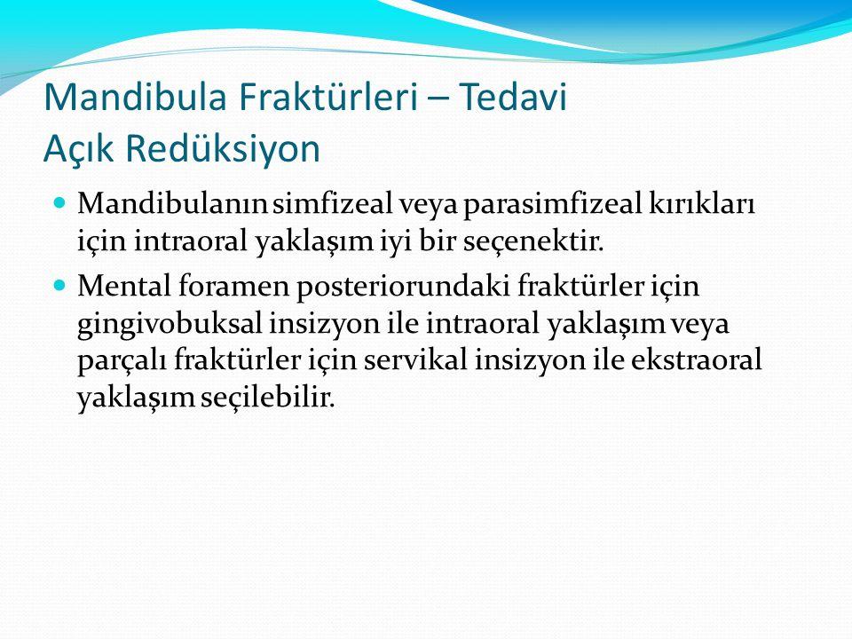 Mandibula Fraktürleri – Tedavi Açık Redüksiyon Mandibulanın simfizeal veya parasimfizeal kırıkları için intraoral yaklaşım iyi bir seçenektir. Mental