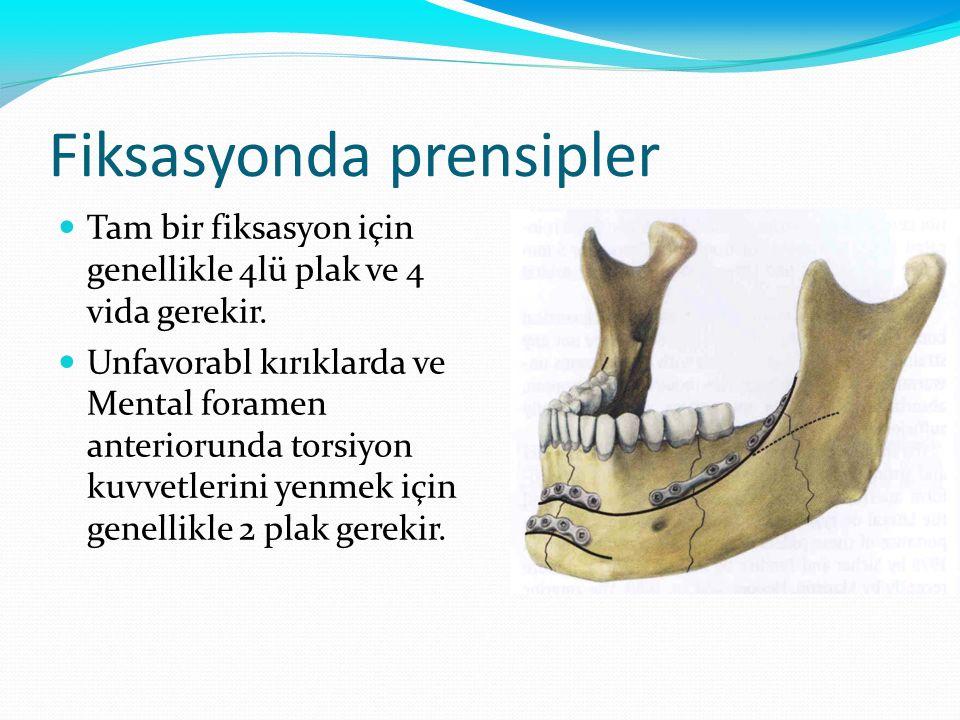 Fiksasyonda prensipler Tam bir fiksasyon için genellikle 4lü plak ve 4 vida gerekir. Unfavorabl kırıklarda ve Mental foramen anteriorunda torsiyon kuv