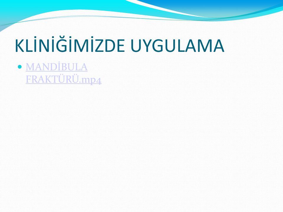 KLİNİĞİMİZDE UYGULAMA MANDİBULA FRAKTÜRÜ.mp4 MANDİBULA FRAKTÜRÜ.mp4