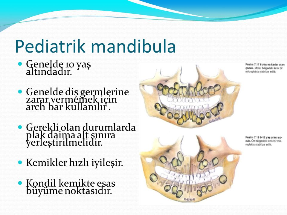 Pediatrik mandibula Genelde 10 yaş altındadır. Genelde diş germlerine zarar vermemek için arch bar kullanılır. Gerekli olan durumlarda plak daima alt