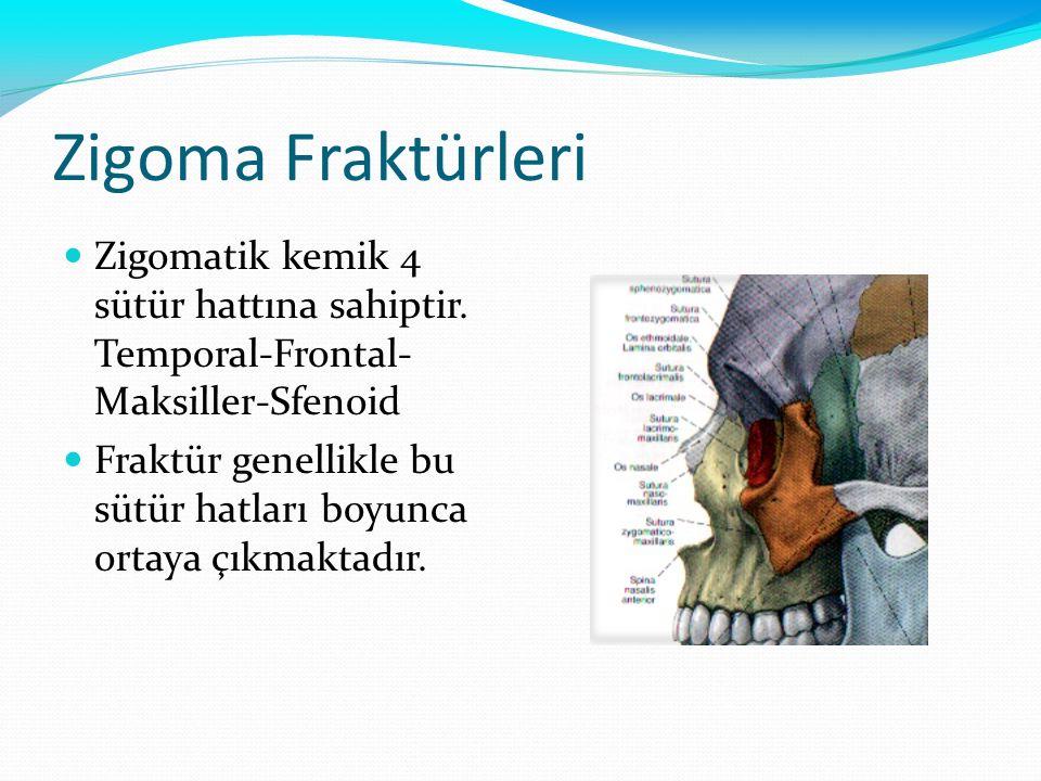 Zigoma Fraktürleri Zigomatik kemik 4 sütür hattına sahiptir. Temporal-Frontal- Maksiller-Sfenoid Fraktür genellikle bu sütür hatları boyunca ortaya çı