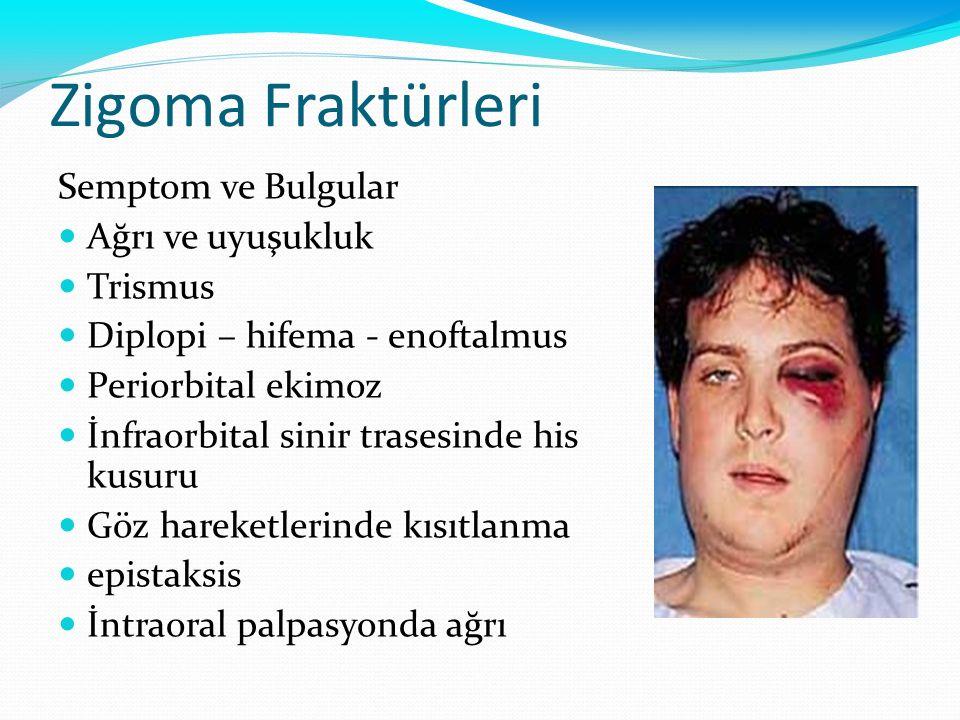 Zigoma Fraktürleri Semptom ve Bulgular Ağrı ve uyuşukluk Trismus Diplopi – hifema - enoftalmus Periorbital ekimoz İnfraorbital sinir trasesinde his ku