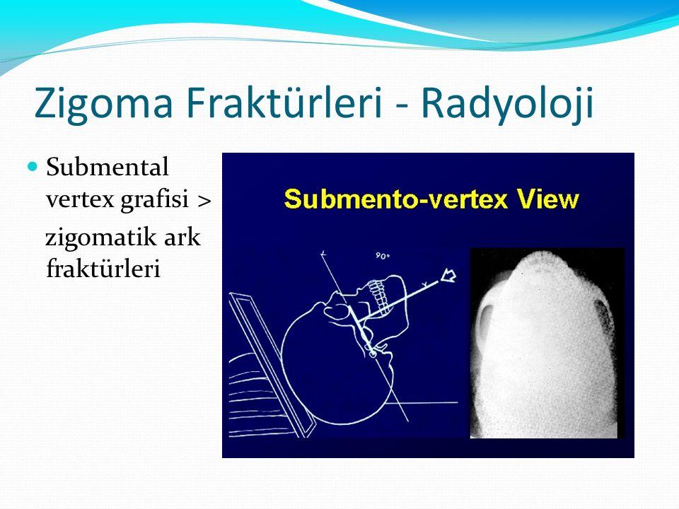 Zigoma Fraktürleri - Radyoloji Submental vertex grafisi > zigomatik ark fraktürleri