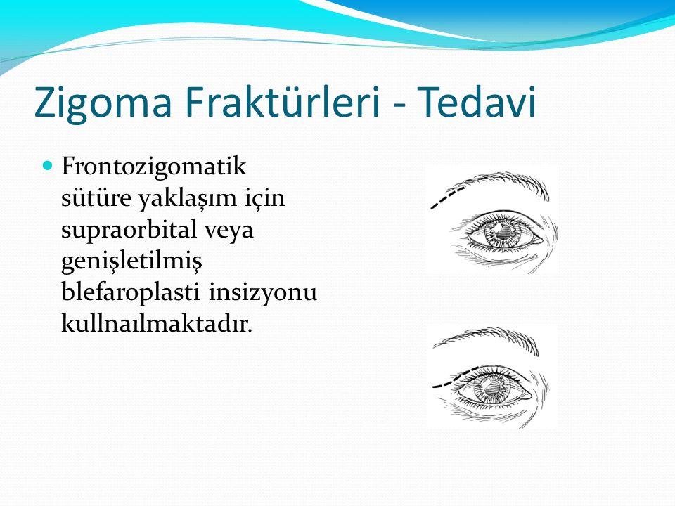 Zigoma Fraktürleri - Tedavi Frontozigomatik sütüre yaklaşım için supraorbital veya genişletilmiş blefaroplasti insizyonu kullnaılmaktadır.