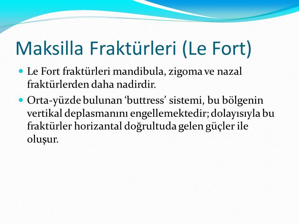 Maksilla Fraktürleri (Le Fort) Le Fort fraktürleri mandibula, zigoma ve nazal fraktürlerden daha nadirdir. Orta-yüzde bulunan 'buttress' sistemi, bu b