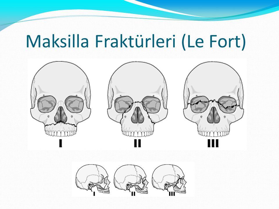 Maksilla Fraktürleri (Le Fort)