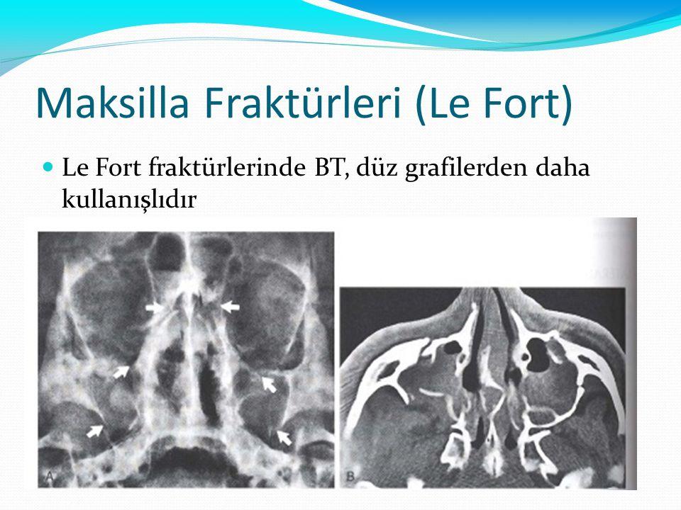 Maksilla Fraktürleri (Le Fort) Le Fort fraktürlerinde BT, düz grafilerden daha kullanışlıdır