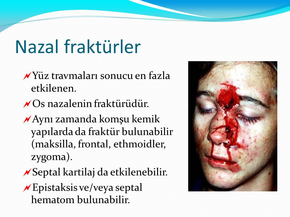 Nazal fraktürler  Yüz travmaları sonucu en fazla etkilenen.  Os nazalenin fraktürüdür.  Aynı zamanda komşu kemik yapılarda da fraktür bulunabilir (