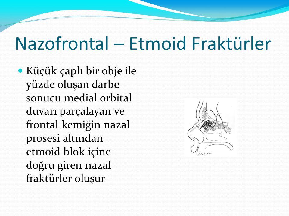 Nazofrontal – Etmoid Fraktürler Küçük çaplı bir obje ile yüzde oluşan darbe sonucu medial orbital duvarı parçalayan ve frontal kemiğin nazal prosesi a