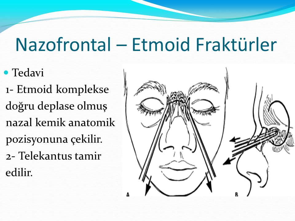 Nazofrontal – Etmoid Fraktürler Tedavi 1- Etmoid komplekse doğru deplase olmuş nazal kemik anatomik pozisyonuna çekilir. 2- Telekantus tamir edilir.