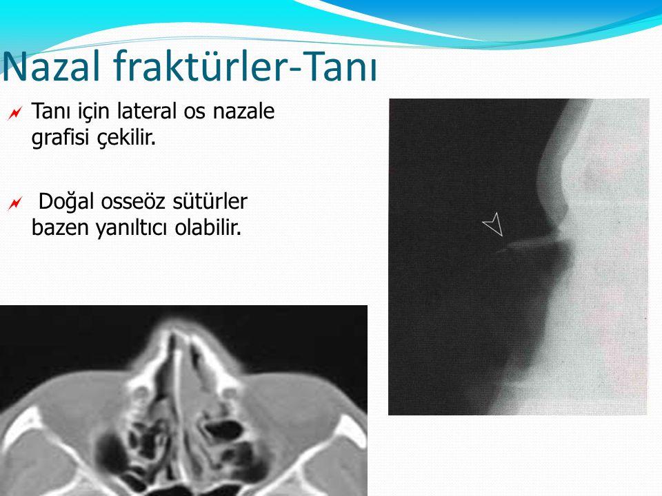 Nazal fraktürler-Tanı  Tanı için lateral os nazale grafisi çekilir.  Doğal osseöz sütürler bazen yanıltıcı olabilir.