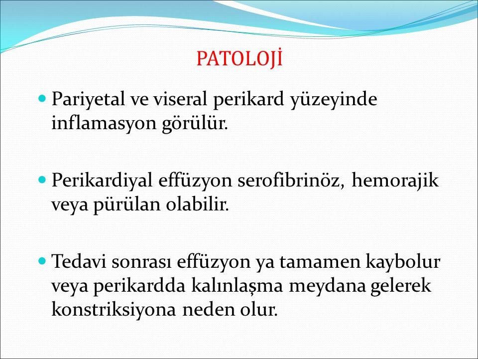 PATOLOJİ Pariyetal ve viseral perikard yüzeyinde inflamasyon görülür. Perikardiyal effüzyon serofibrinöz, hemorajik veya pürülan olabilir. Tedavi sonr