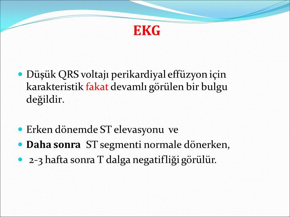 EKG Düşük QRS voltajı perikardiyal effüzyon için karakteristik fakat devamlı görülen bir bulgu değildir. Erken dönemde ST elevasyonu ve Daha sonra ST