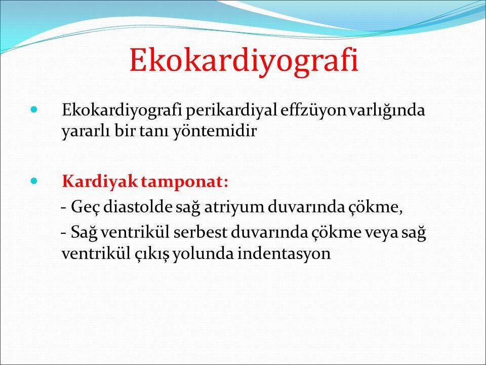 Ekokardiyografi Ekokardiyografi perikardiyal effzüyon varlığında yararlı bir tanı yöntemidir Kardiyak tamponat: - Geç diastolde sağ atriyum duvarında