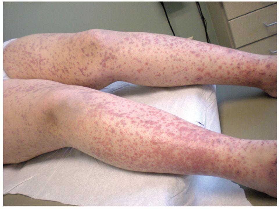 Meningokoksemi; genellikle ateş ve halsizliğe neden olan ciddi sistemik bir enfeksiyondur.