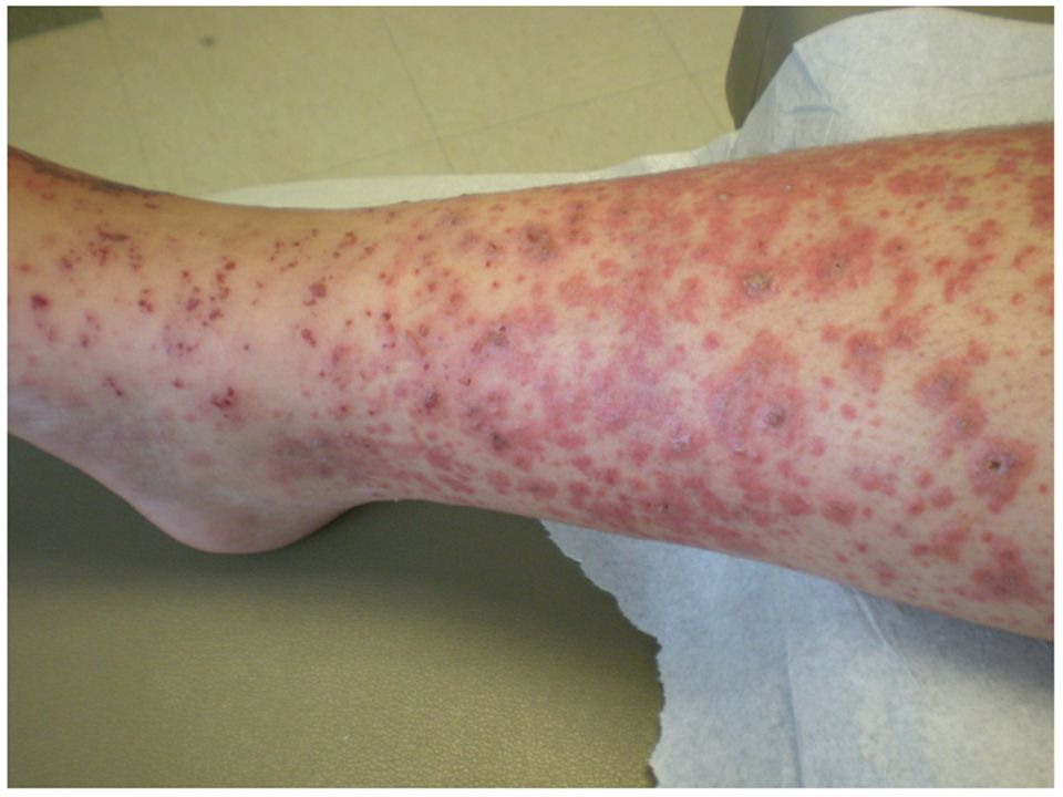 Soru .Kontakt dermatit . Henoch-Schönlein purpurası .