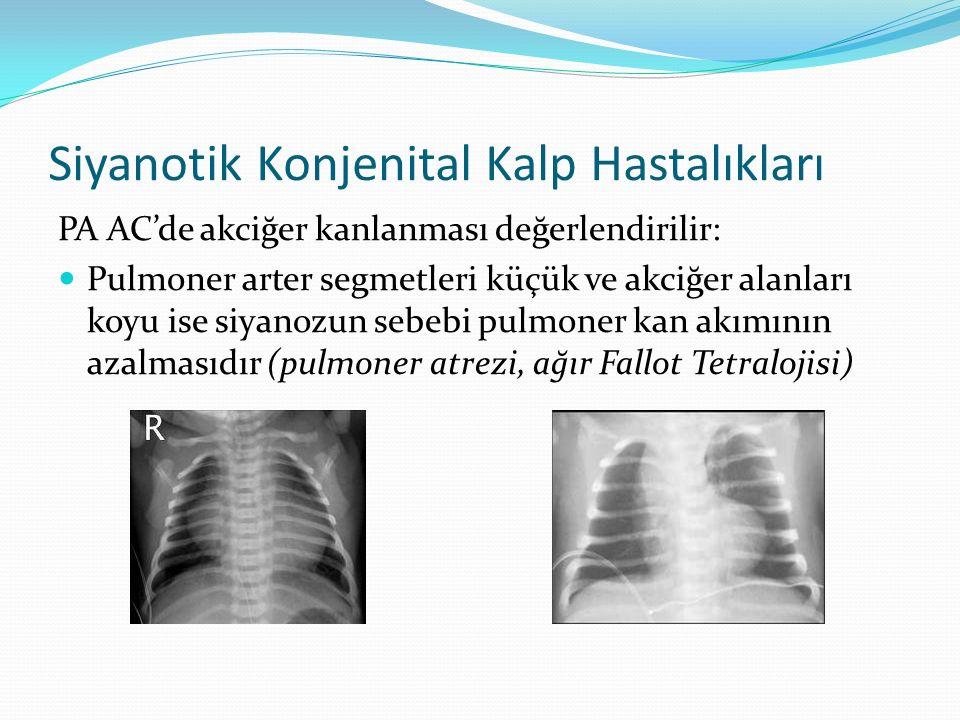 Siyanotik Konjenital Kalp Hastalıkları PA AC'de akciğer kanlanması değerlendirilir: Pulmoner arter segmetleri küçük ve akciğer alanları koyu ise siyanozun sebebi pulmoner kan akımının azalmasıdır (pulmoner atrezi, ağır Fallot Tetralojisi)