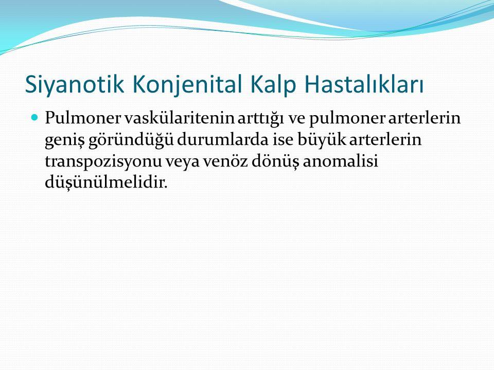 Siyanotik Konjenital Kalp Hastalıkları Pulmoner vaskülaritenin arttığı ve pulmoner arterlerin geniş göründüğü durumlarda ise büyük arterlerin transpozisyonu veya venöz dönüş anomalisi düşünülmelidir.