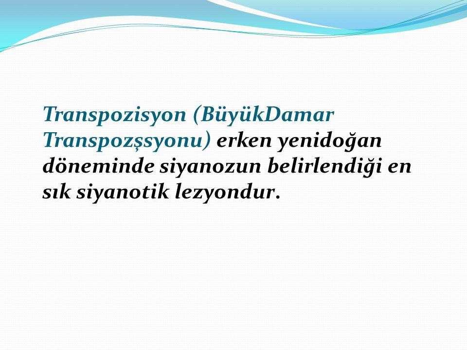 Transpozisyon (BüyükDamar Transpozşsyonu) erken yenidoğan döneminde siyanozun belirlendiği en sık siyanotik lezyondur.