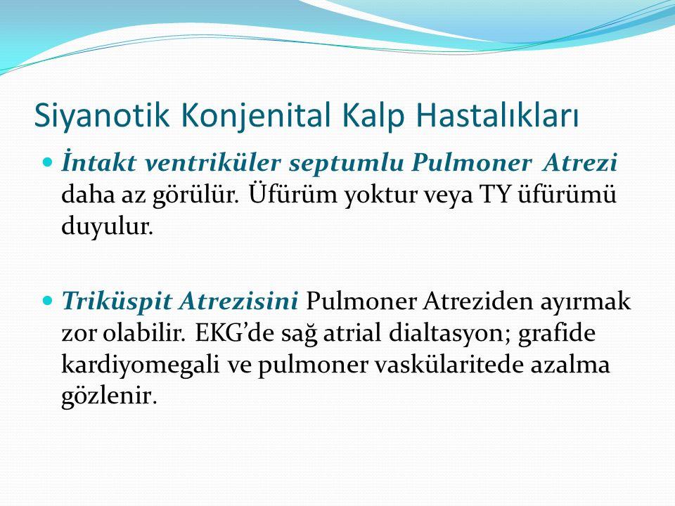 Siyanotik Konjenital Kalp Hastalıkları İntakt ventriküler septumlu Pulmoner Atrezi daha az görülür. Üfürüm yoktur veya TY üfürümü duyulur. Triküspit A