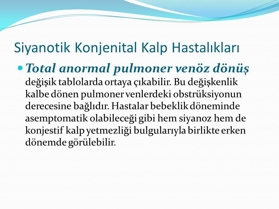 Siyanotik Konjenital Kalp Hastalıkları Total anormal pulmoner venöz dönüş değişik tablolarda ortaya çıkabilir. Bu değişkenlik kalbe dönen pulmoner ven