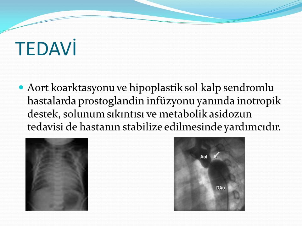 TEDAVİ Aort koarktasyonu ve hipoplastik sol kalp sendromlu hastalarda prostoglandin infüzyonu yanında inotropik destek, solunum sıkıntısı ve metabolik asidozun tedavisi de hastanın stabilize edilmesinde yardımcıdır.