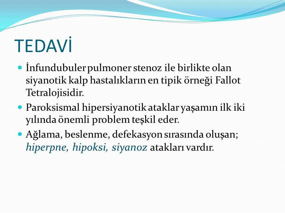 TEDAVİ İnfundubuler pulmoner stenoz ile birlikte olan siyanotik kalp hastalıkların en tipik örneği Fallot Tetralojisidir. Paroksismal hipersiyanotik a