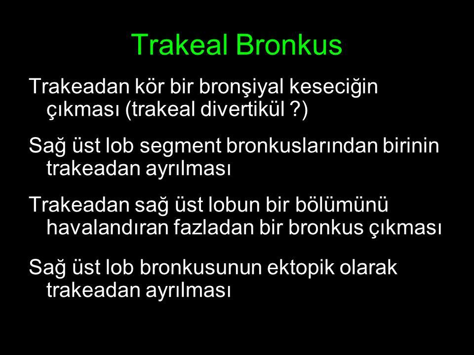 Trakeal Bronkus Trakeadan kör bir bronşiyal keseciğin çıkması (trakeal divertikül ?) Sağ üst lob segment bronkuslarından birinin trakeadan ayrılması Trakeadan sağ üst lobun bir bölümünü havalandıran fazladan bir bronkus çıkması Sağ üst lob bronkusunun ektopik olarak trakeadan ayrılması