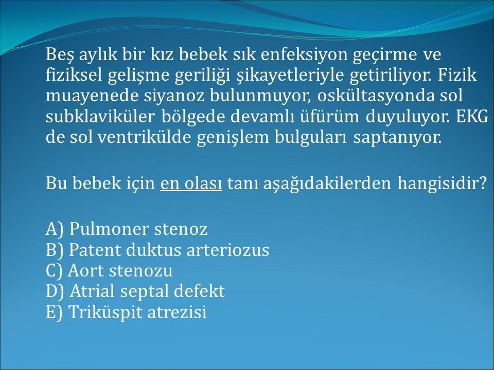 Ventriküler septal defekt bulunan bir hastada aşağıdakilerden hangisi Eisenmenger sendromu tanısı koydurur.