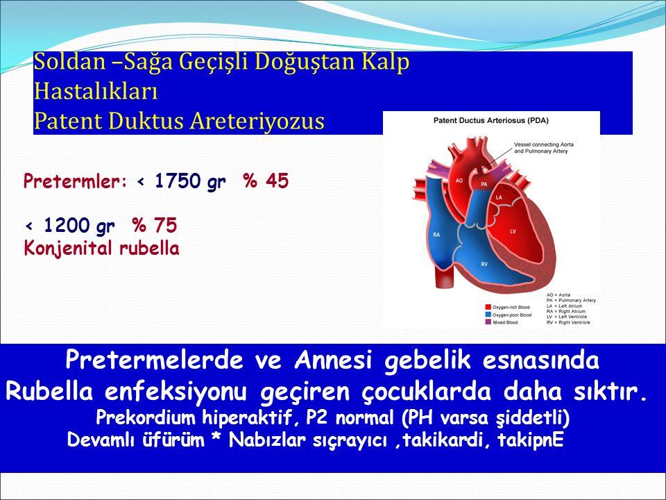 Soldan –Sağa Geçişli Doğuştan Kalp Hastalıkları Patent Duktus Areteriyozus Pretermelerde ve Annesi gebelik esnasında Rubella enfeksiyonu geçiren çocuk