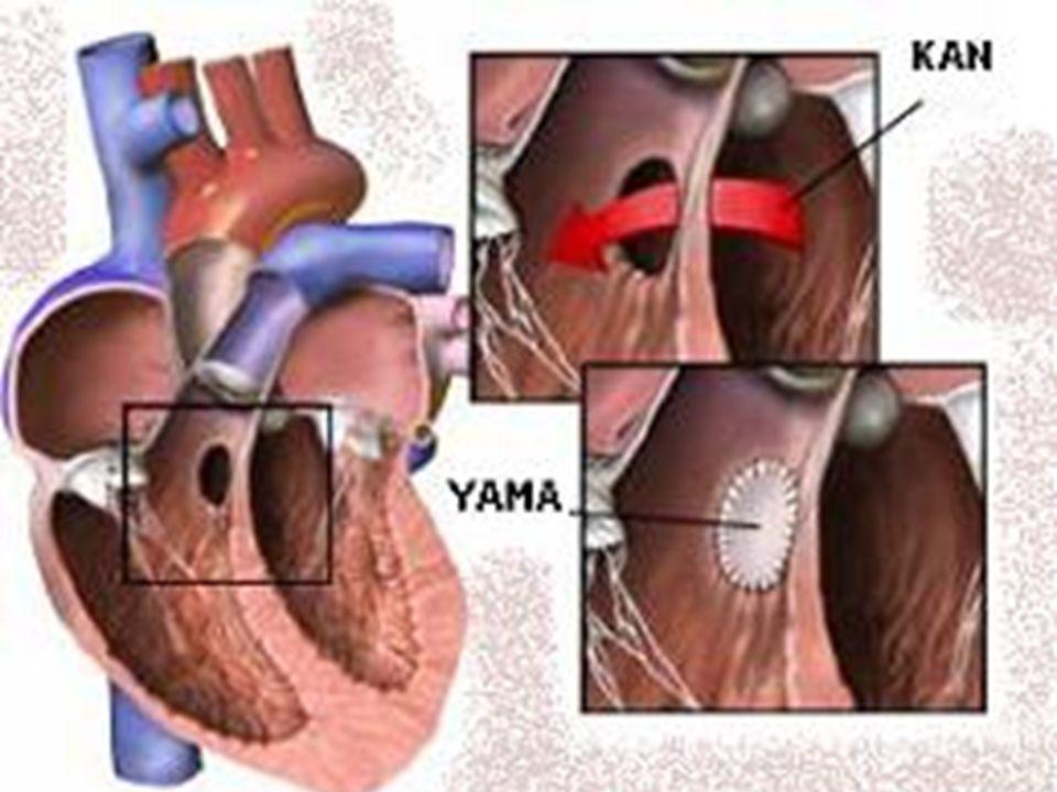 Aşağıdakilerden hangisi küçük ventriküler septal defektin komplikasyonlarından biridir.