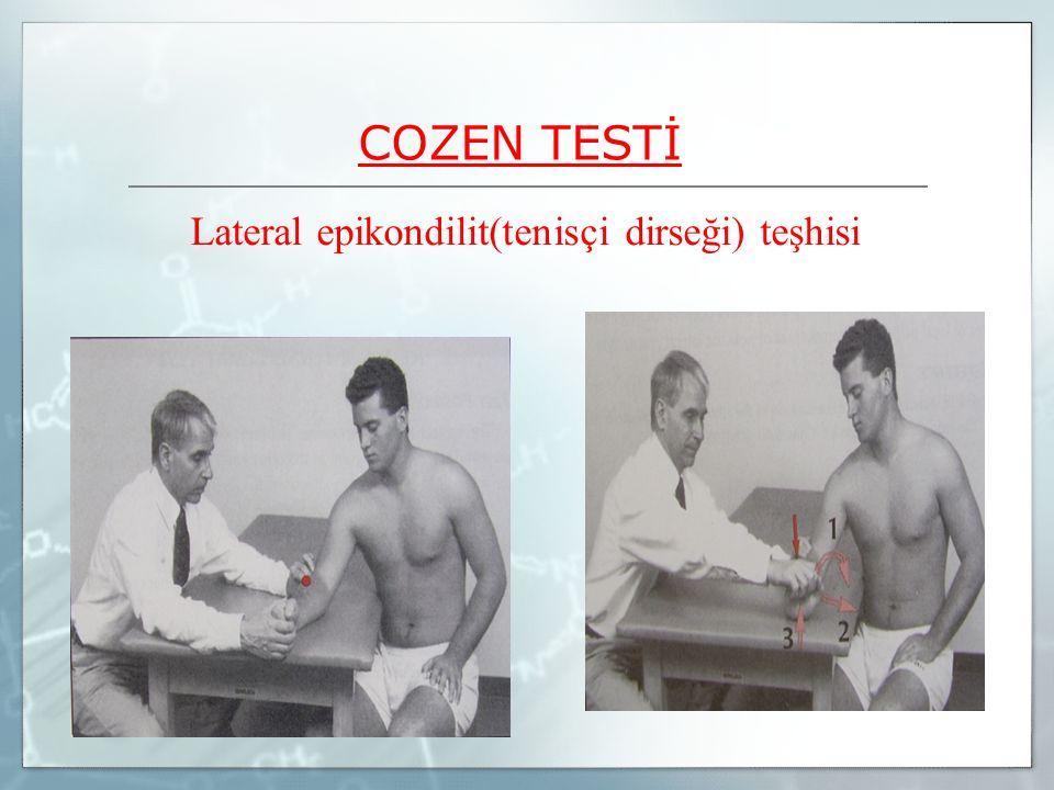 COZEN TESTİ Lateral epikondilit(tenisçi dirseği) teşhisi