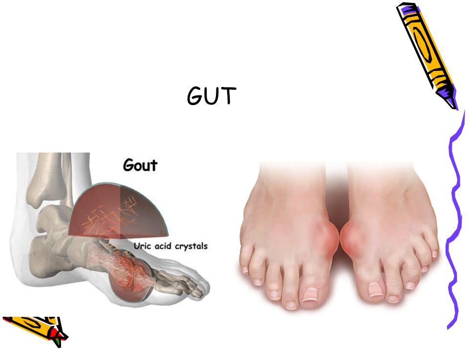 Gut, hiperürisemi, tekrarlayan artrit atakları ve eklem içinde ve çevre dokuda monosodyum ürat kristallerinin depolanması ile karakterize bir hastalıktır.