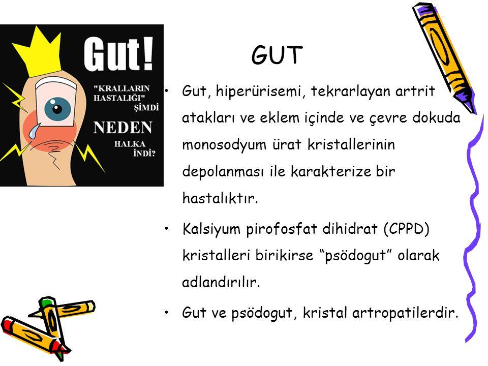 Gut, hiperürisemi, tekrarlayan artrit atakları ve eklem içinde ve çevre dokuda monosodyum ürat kristallerinin depolanması ile karakterize bir hastalık
