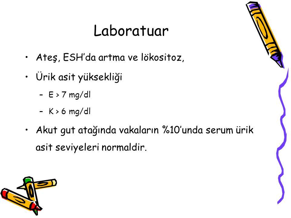 Laboratuar Ateş, ESH'da artma ve lökositoz, Ürik asit yüksekliği –E > 7 mg/dl –K > 6 mg/dl Akut gut atağında vakaların %10'unda serum ürik asit seviye