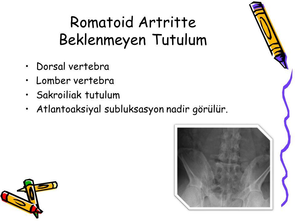 Romatoid Artritin Spesifik Eklemlerdeki Bulguları El: Ulnar deviasyon, kuğu boynu deformitesi, düğme iliği deformitesi El bileği: Karpal tünel sendromu Omuz: Donmuş omuz Diz: Baker kisti