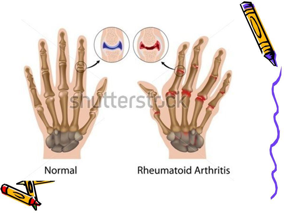 RA'da el deformiteleri