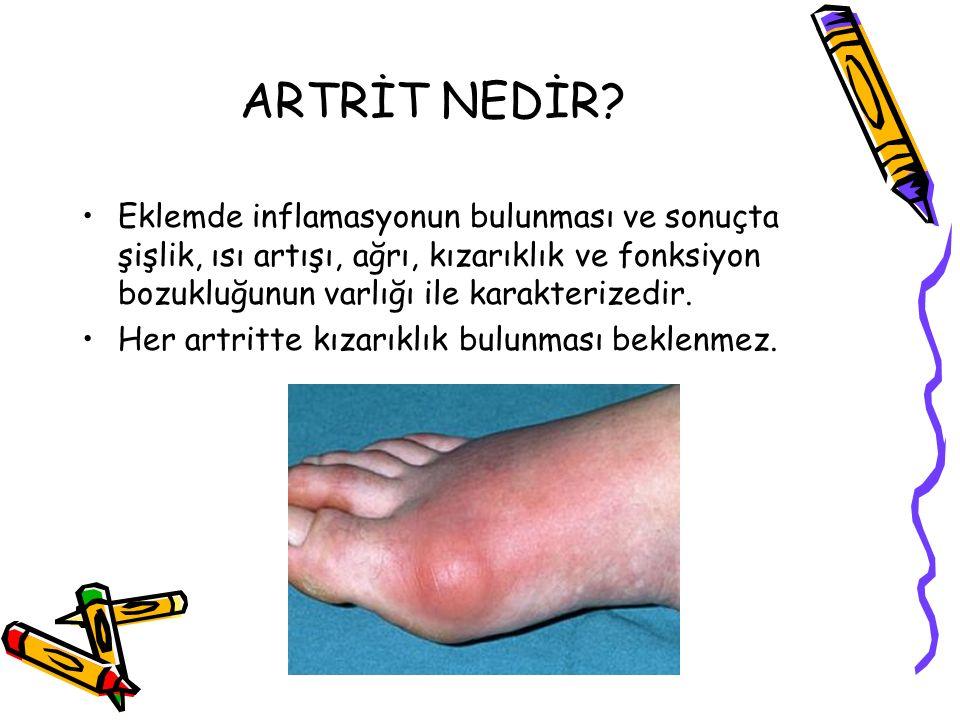 Artritli hastalarda anamnez alınırken bazı soruların yöneltilmesi gereklidir ???