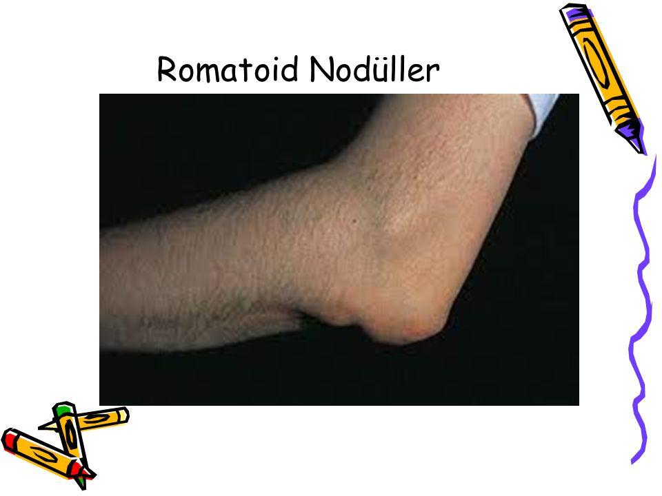 Romatoid Nodüller