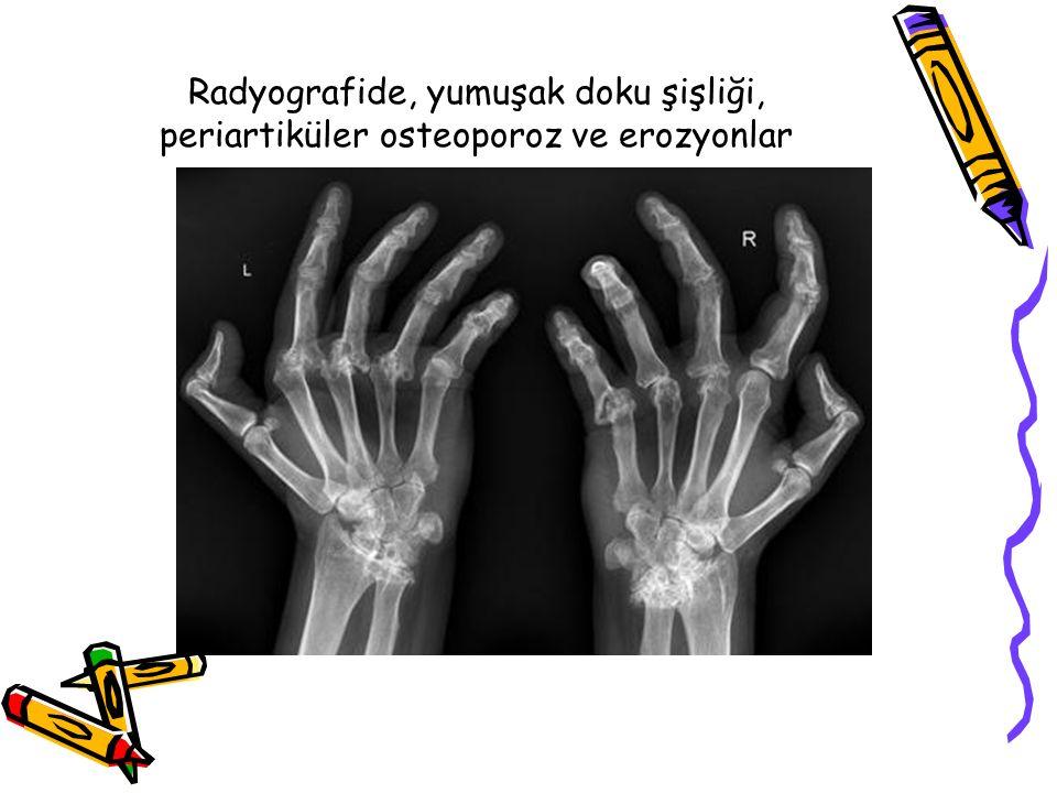 Tanı Kriterleri 1987 ARA 1 saat en az 6 hafta sabah tutukluğu En az 3 bölgede artrit El eklemlerinin artriti (El bileği,MKF,PIF) Simetrik artrit Romatoid nodül RF+ Radyolojik bulgular Bulgular en az 6 haftadır olmalıdır 7 kriterden 4 tanesi pozitifse tanı konulur