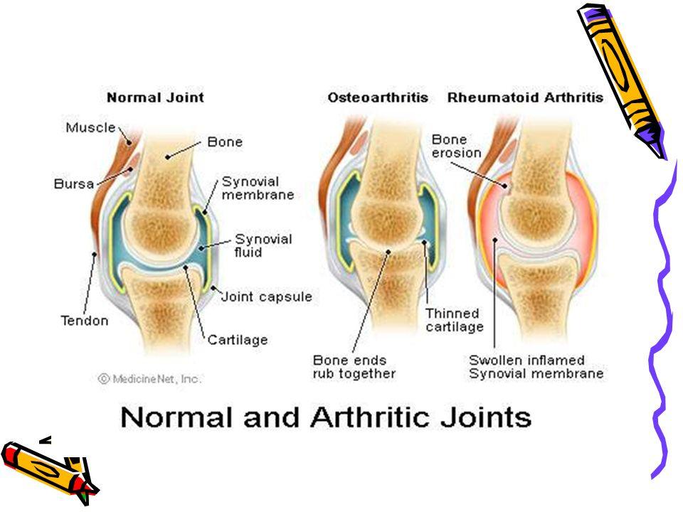 Primer osteoartrit risk faktörleri Sekonder Osteoartrit risk faktörleri Etiyoloji net bilinmemektedir.
