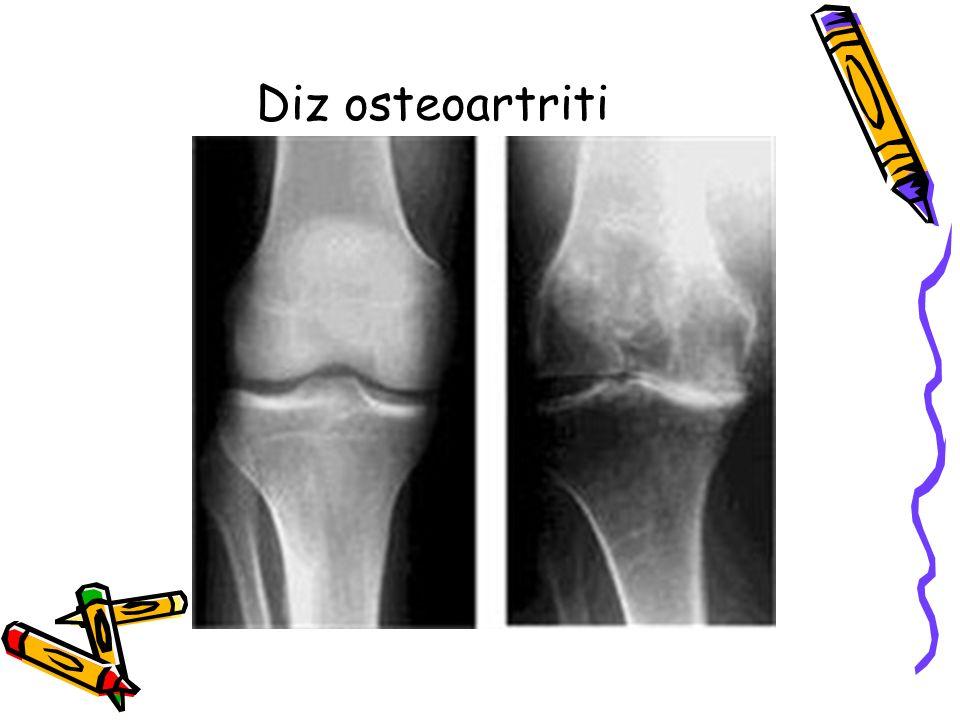 Kalça Eklemi Osteoartriti Koksartroz Erkeklerde ve >40 yaşında daha yaygın Eklem sertliği Kalça, gluteal ve kasık bölgede ağrı - dize kadar yayılma (N obturatorius) Mekanik ağrı Yürüme fonksiyonunda kısıtlanma < 1000m