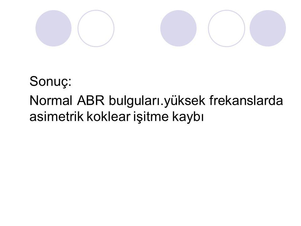 Sonuç: Normal ABR bulguları.yüksek frekanslarda asimetrik koklear işitme kaybı