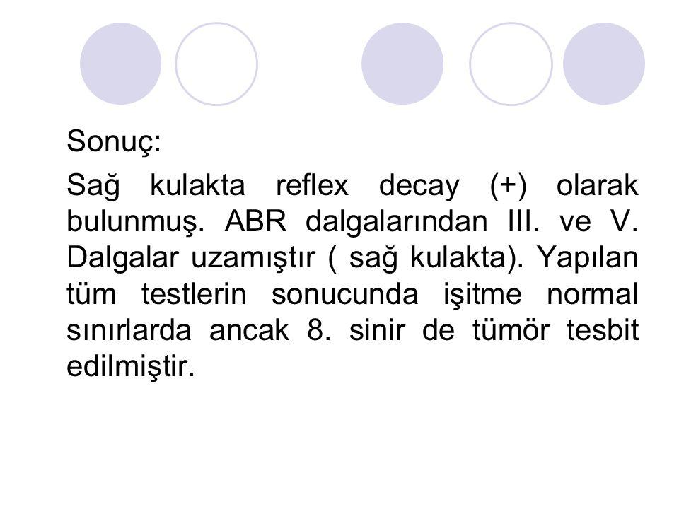 Sonuç: Sağ kulakta reflex decay (+) olarak bulunmuş. ABR dalgalarından III. ve V. Dalgalar uzamıştır ( sağ kulakta). Yapılan tüm testlerin sonucunda i