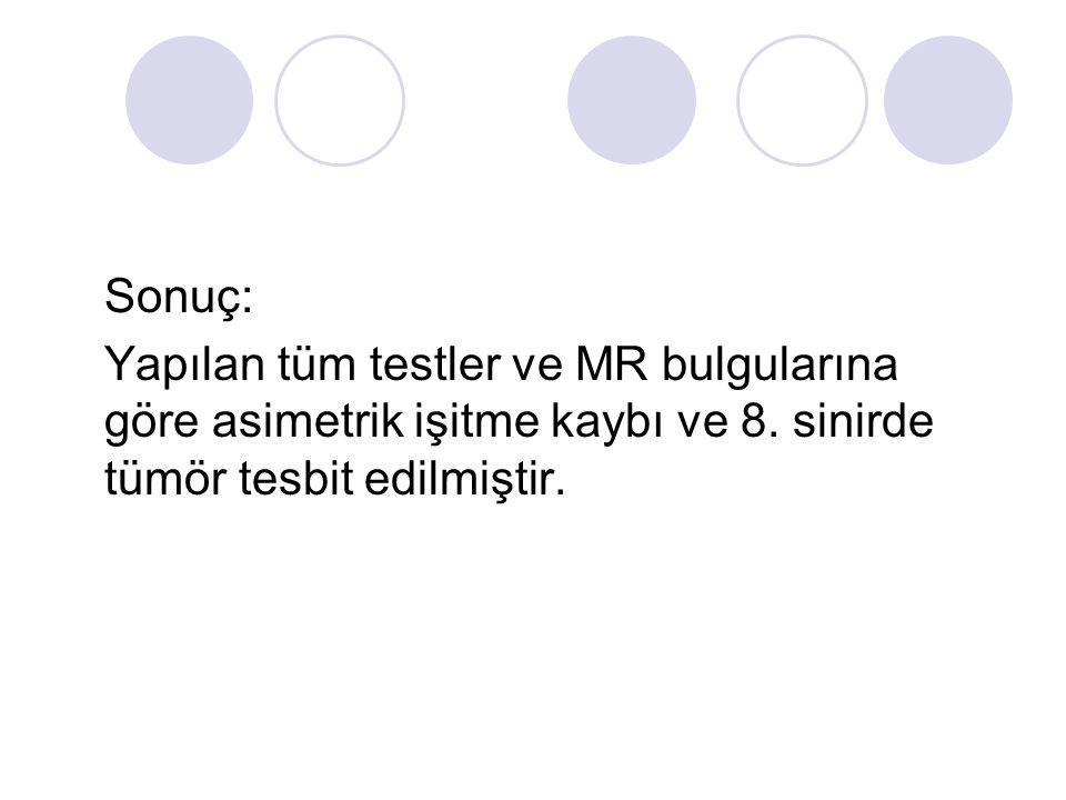 Sonuç: Yapılan tüm testler ve MR bulgularına göre asimetrik işitme kaybı ve 8. sinirde tümör tesbit edilmiştir.