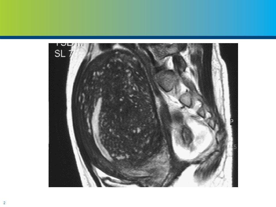3 Semptomlar  Dysmenorrhea  Menorrhagia  Subfertility