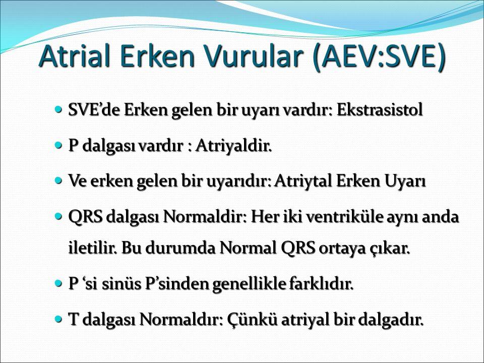Atrial Erken Vurular (AEV:SVE) SVE'de Erken gelen bir uyarı vardır: Ekstrasistol SVE'de Erken gelen bir uyarı vardır: Ekstrasistol P dalgası vardır : Atriyaldir.